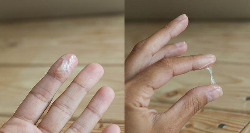 Mãn kinh bị ra huyết trắng là dấu hiệu cảnh báo các bệnh phụ khoa nguy hiểm