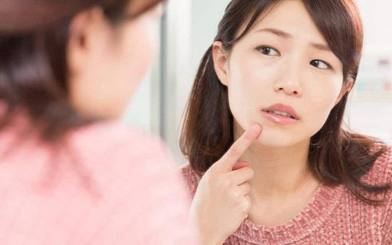 Rối loạn nội tiết tố có gây mụn không?