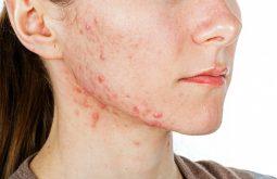 Tình trạng mụn nội tiết nổi nhiều dưới vùng cằm, mặt với mức độ tổn thương ở mỗi người là khác nhau