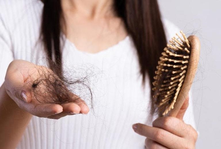 Lượng tóc rụng quá nhiều/lần chải là dấu hiệu nhận biết