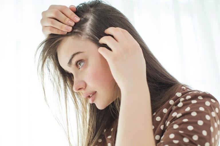 Rụng tóc vấn đề gây phiền muộn cho chị em bị rối loạn nội tiết tố